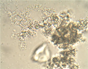 Bacterial Cells that aggregate in Floc